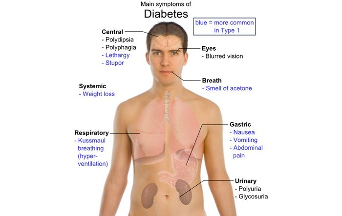 10 signs of diabetes everyone should know