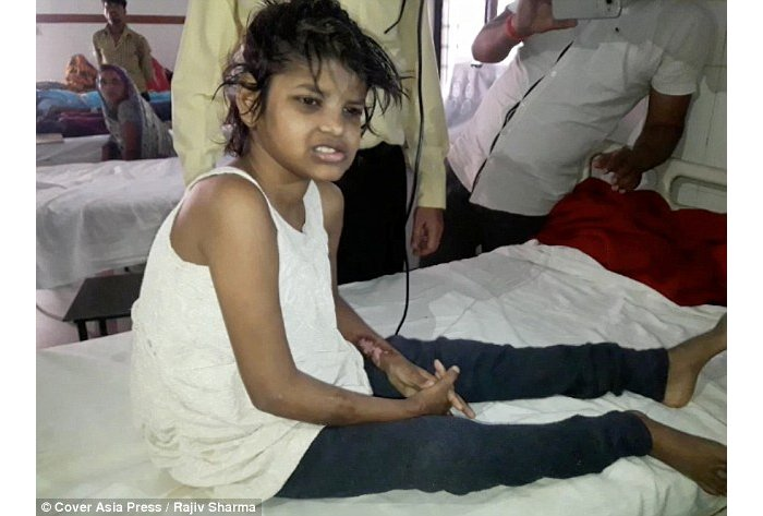 'Mowgli girl' who walks on all fours and does not speak like a human is found living with monkeys in India
